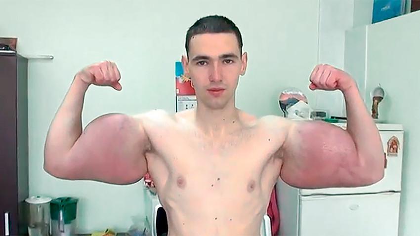 21-годишният Кирил Терешин избира краткия път и посяга към инжекциите със синтол, за да постигне мечтаното тяло.