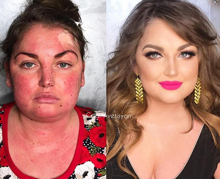 Katya, cicatrizes e sinais de pele