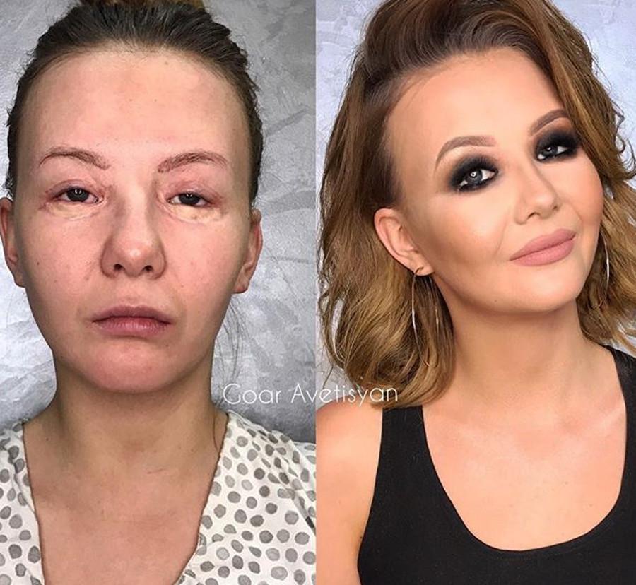 Vlada, cicatrizes de uma cirurgia nos olhos