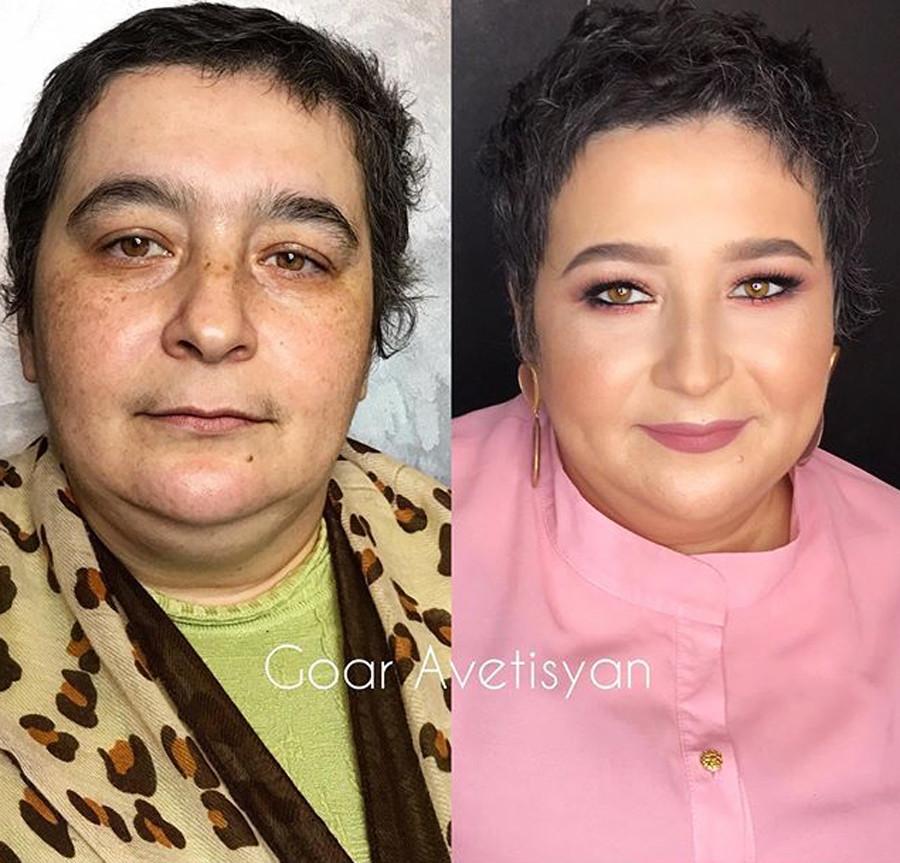 Мадина, рак