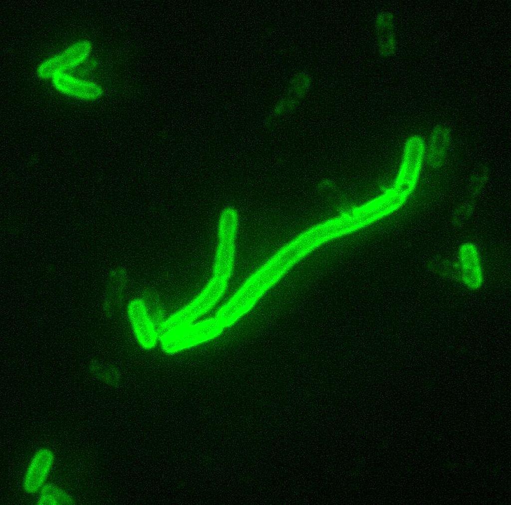 Bakterija Yersinia pestis, 200x povečava.