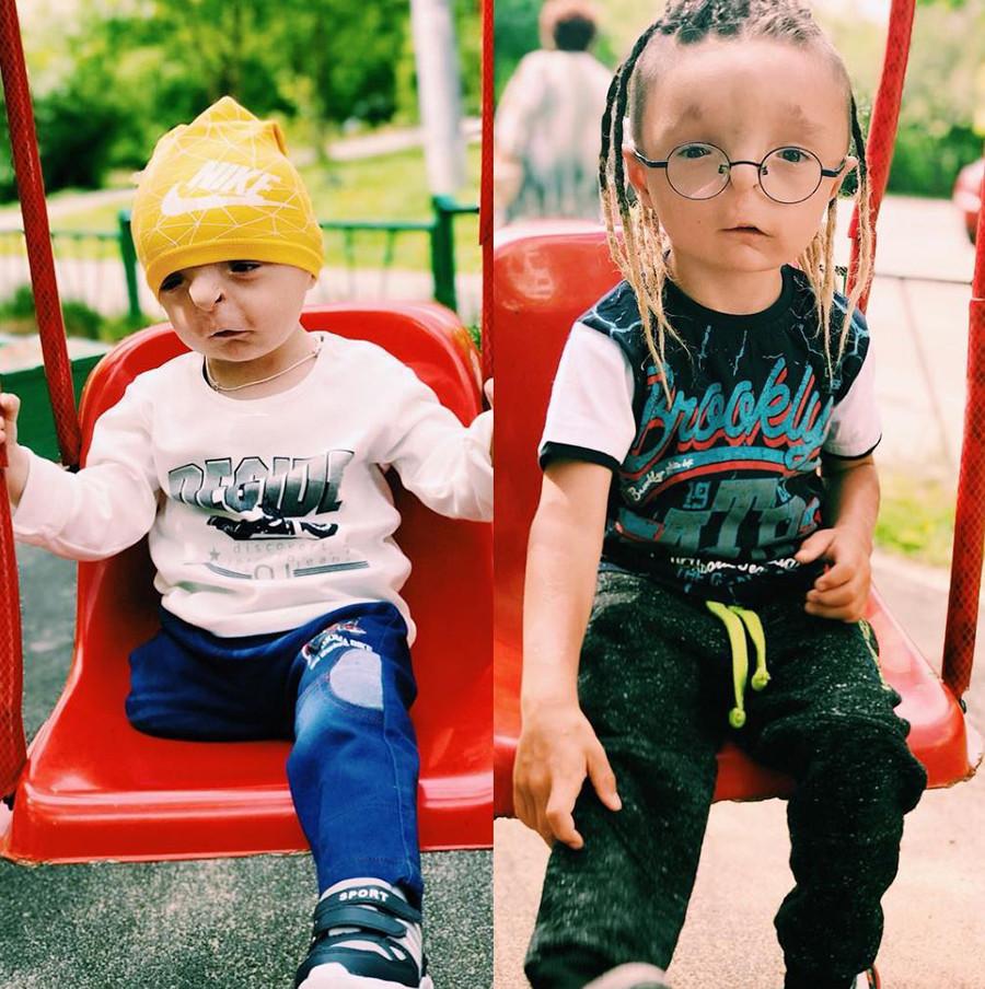 Antes e depois: Rustam quando foi adotado e depois de um ano na família de Nika.