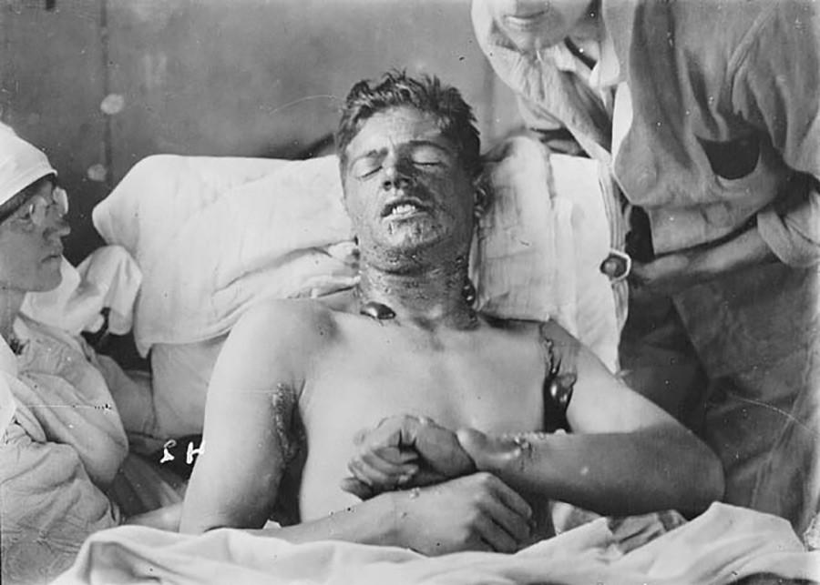 Effet de l'ypérite (nom du gaz moutarde dérivé de la rivière d'Ypres) sur un soldat