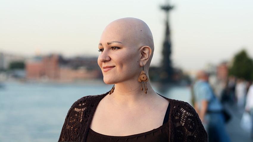 Alisa trägt Glatze: Leben mit krankhaftem Haarausfall