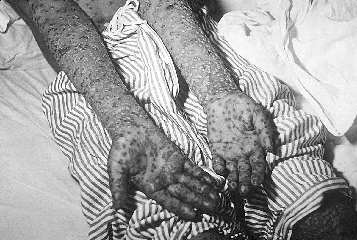Osip na rukama bolesnika 1972.