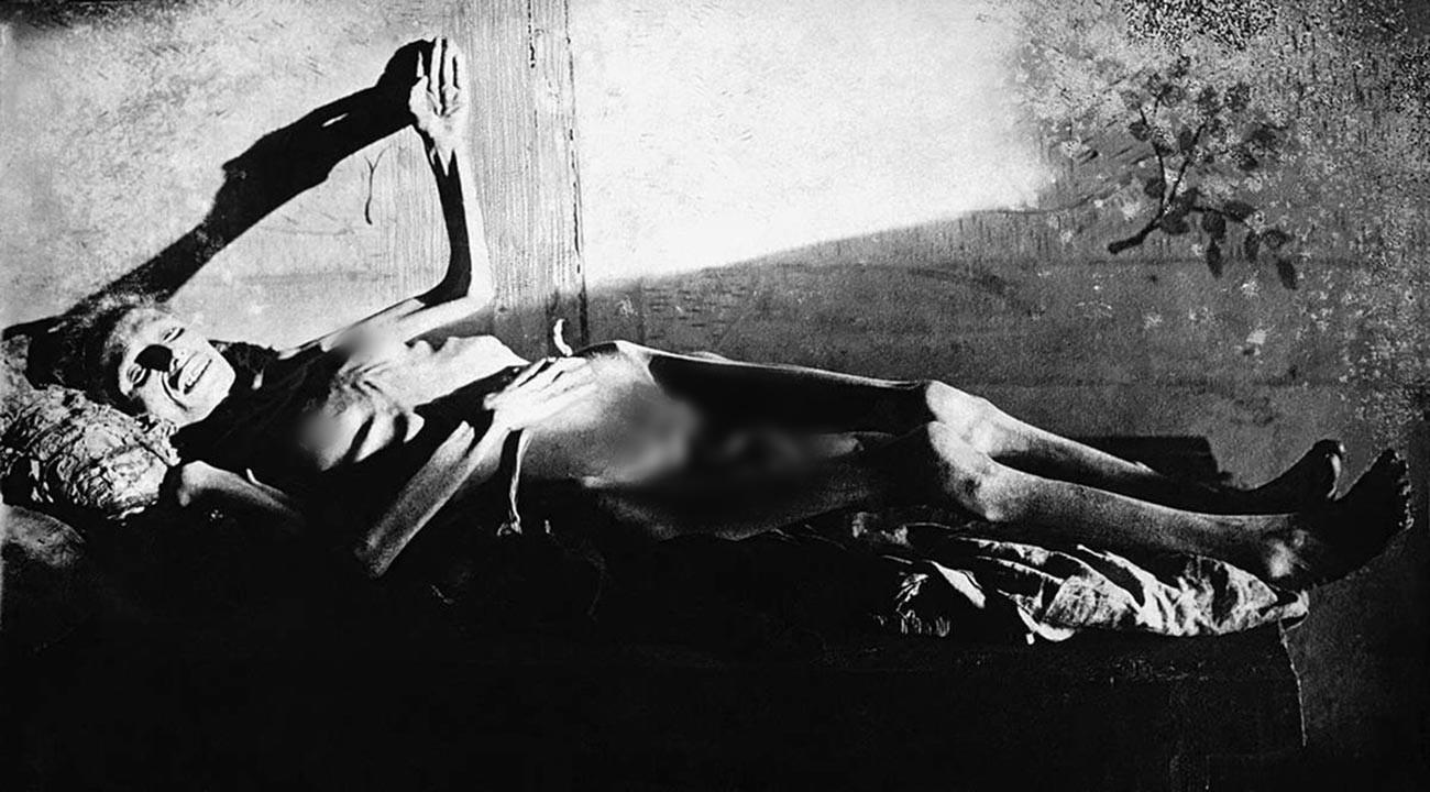 Seorang wanita terbaring karena kelaparan.