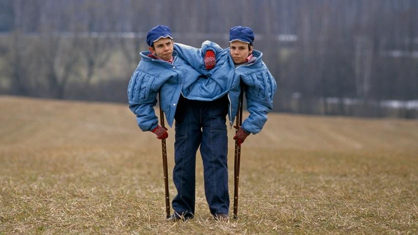 Russian Conjoined Twins Masha And Dasha Krivoshlyapova In Moscow