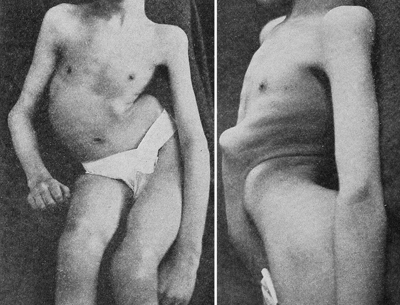 Последствия полиомиелита - деформированный позвоночник