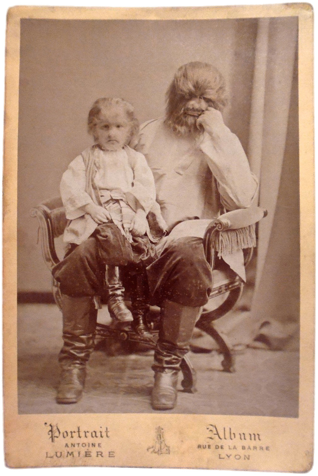 Адриан Евтихиев със сина си Фьодор Евтихиев, известен също като Jo-Jo, момчето с кучешката глава. Клод-Антоан Люмиер
