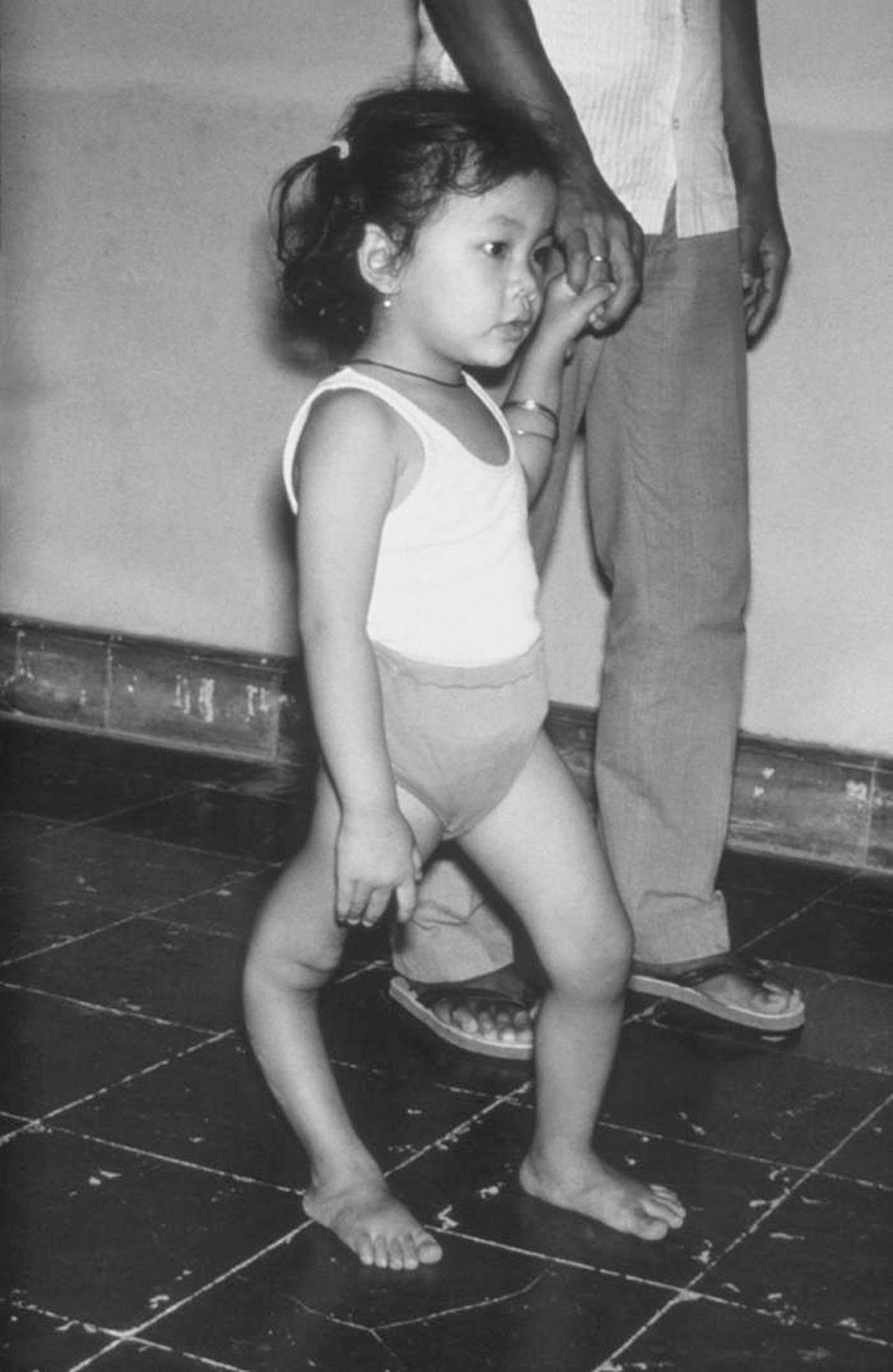 Menina com deformidade na perna direita devido à poliomielite