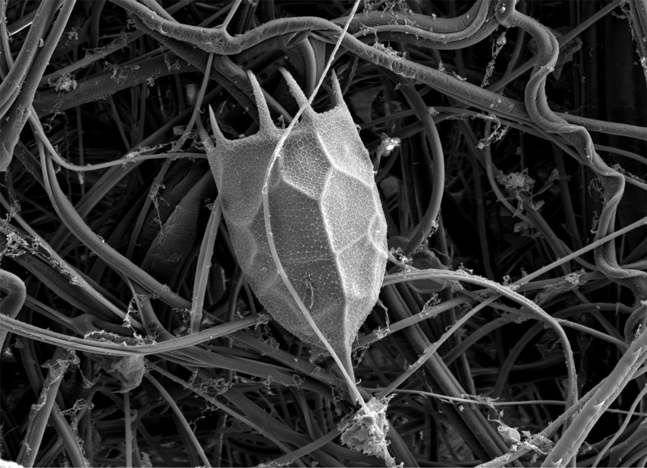 Bagian locula rotifera Keratella cochlearis, pemindaian gambar dengan mikroskop elektron.