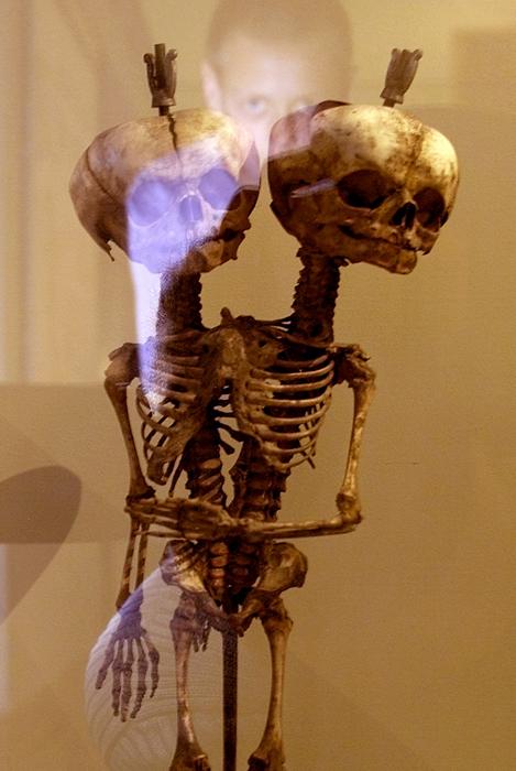 """Le musée est surtout connu pour sa collection de """"monstres"""" - des anomalies et bizarreries anatomiques, dont beaucoup furent achetées par Pierre le Grand en personne au cours de ses voyages en Europe."""
