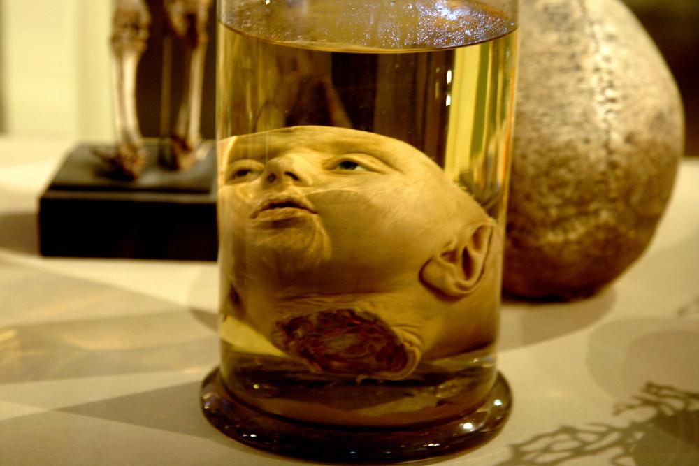 """Parmi les millions de spécimens, les plus fascinants se trouvent au sein de la collection de l'anatomiste hollandais Frederik Ruysch, lequel passa 50 ans à rassembler des spécimens d'enfants """"mouillés"""" (conservés dans de l'éthanol), dont de nombreuses têtes ainsi préparées, et des parties du corps humain."""