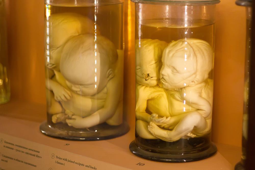 """Любопитно, но в началото на създаването на Кунсткамера там можело да се видят и живи """"експонати"""": хора с увреждания или с необичайна височина или външен вид. След смъртта им скелетите им не се погребвали, а се излагали в музея."""