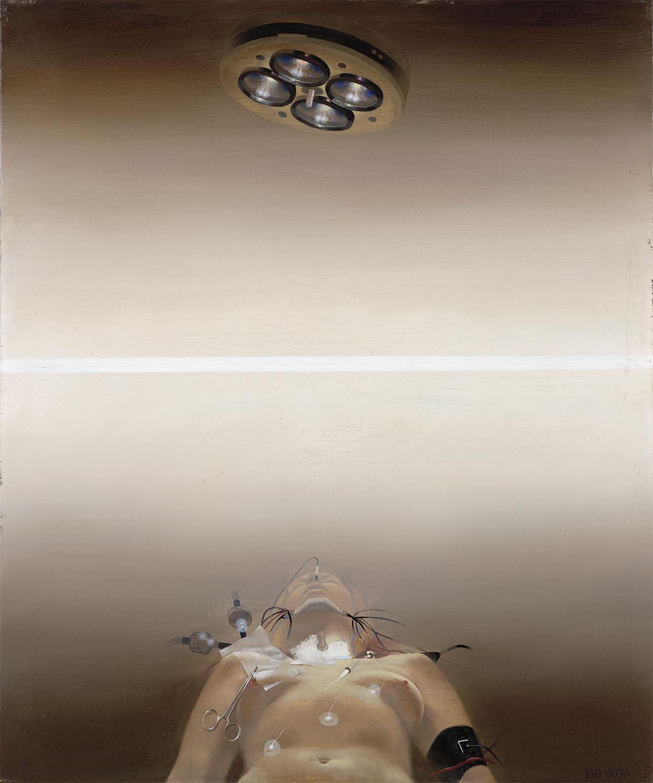 スーパーリアリズムの辛辣で、新鮮で、現代的なスタイルは、当時の才能豊かな芸術家をひとつにした。/ボルコフ「手術」(1980)、国立トレチャコフ美術館