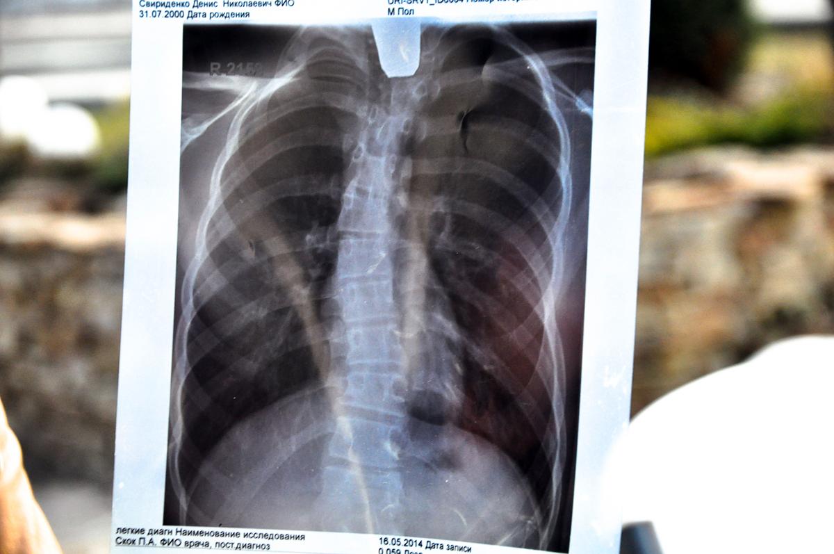 Les radiations causent aussi des problu00e8mes de dos aux enfants. Quand les docteurs ne savent pas quel est le problu00e8me de santu00e9 exact du2019un enfant, ils lu2019appellent u00ab le syndrome de Tchernobyl u00bb.