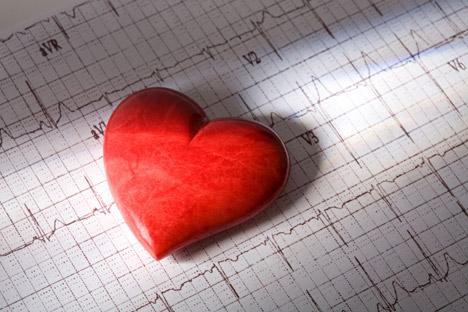 У Русији је смањен број смртних случајева од кардио-васкуларних обољења. Извор: Alamy / Legion