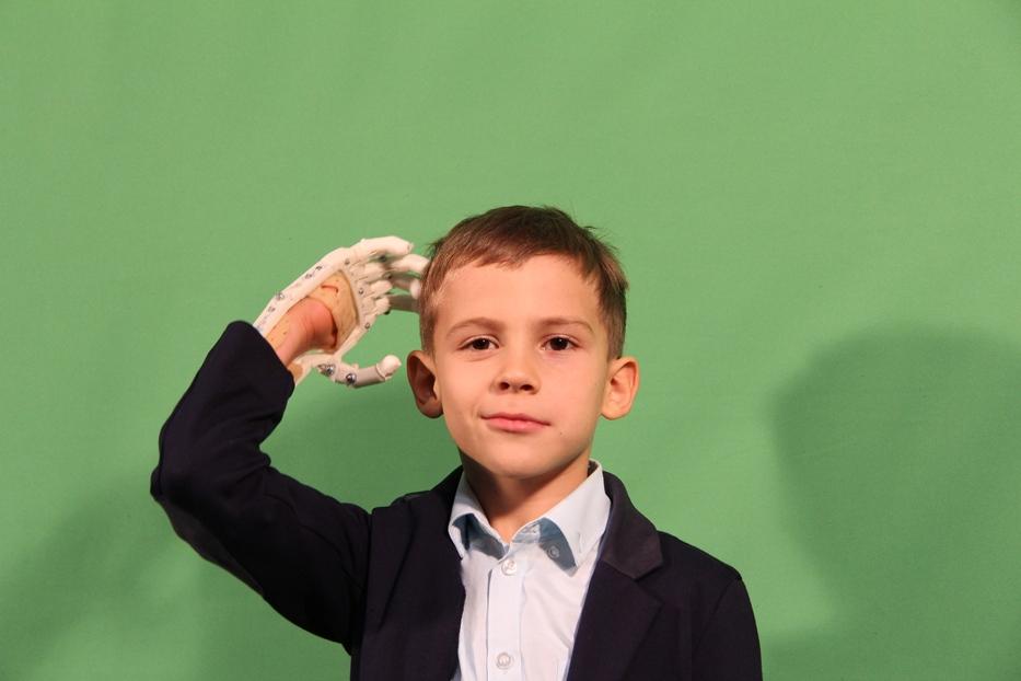 Der Start-up Motorika entwickelt bunte Kinderprothesen mit Halterungen für unterschiedliche Gegenstände: Laserpointer, Springseile, Smartphones.