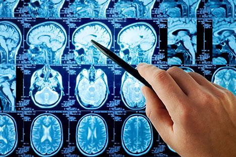 """Во Русија традиционално, целосниот успех на отстранување на туморот се одредува """"од око"""", поаѓајќи од искуството на хирургот, по резултатите од магнетната резонанца. Но, ваквата оцена е субјективна. На снимките е тешко да се забележат остатоците од туморот: крв, материја која го запира изливот на крв, остатоци од тумори – сето тоа на магнетната резонанца има отприлика иста боја. Извор: Shutterstock"""