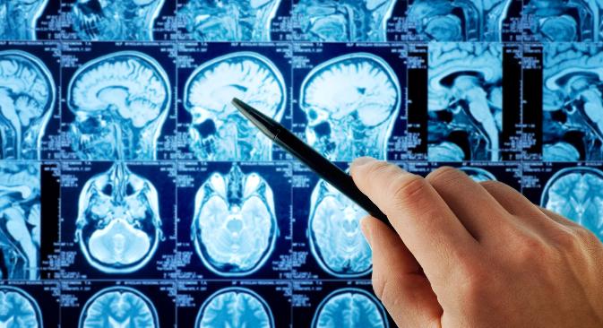 Злоћудни тумор на мозгу се не може увек удаљити у потпуности, јер је могуће да захвата функционално значајне делове. Извор: Shutterstock.